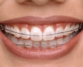upload/sanpham/fixed-orthodonti-6507.jpg